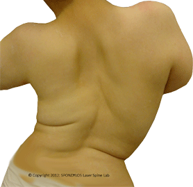 Neuromuscular Scoliosis
