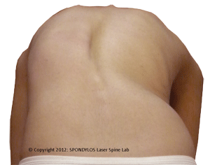 Scoliosis Test